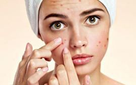درمان جوش صورت بعد از اصلاح | 10 راهکار خانگی و طبیعی در درمان جای جوش صورت