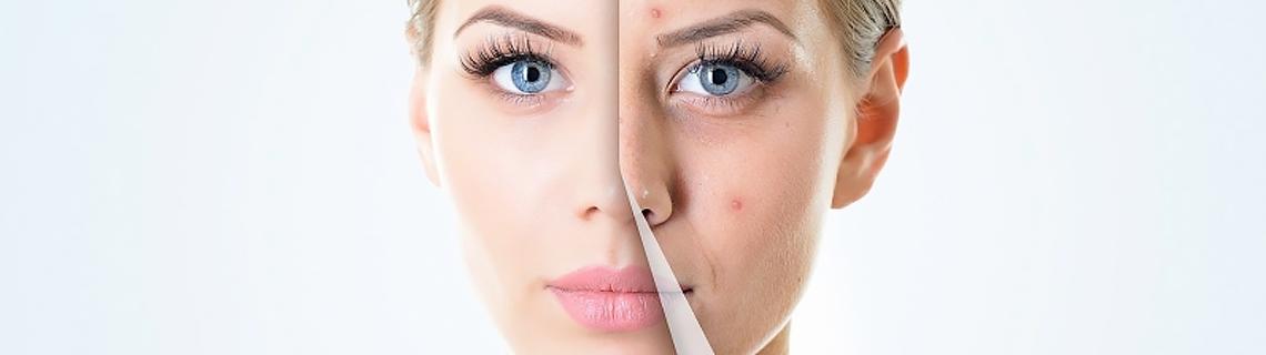 درمان جوش صورت با طب سنتی - 10 راهکار خانگی و طبیعی در درمان جای جوش صورت