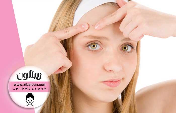 درمان جوش صورت با دارو