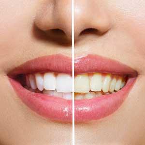 درمان پوسیدگی دندان | معجزه 6 روش در درمان 100٪ تضمینی