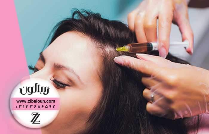 درمان ریزش مو تضمینی