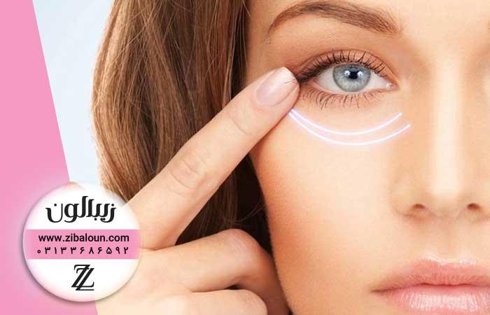 جدیدترین درمان چروک دور چشم