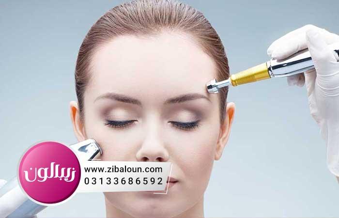 اهمیت درمان چروک دور چشم با لیزر