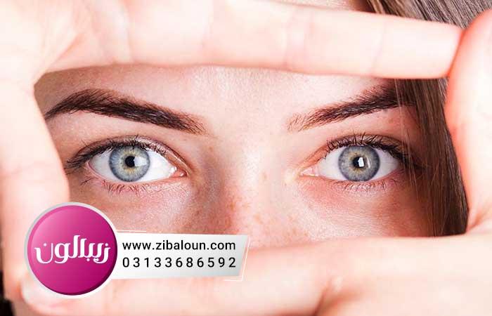 درمان گیاهی چروک دور چشم