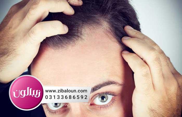 درمان شوره سر با نمک و زیتون