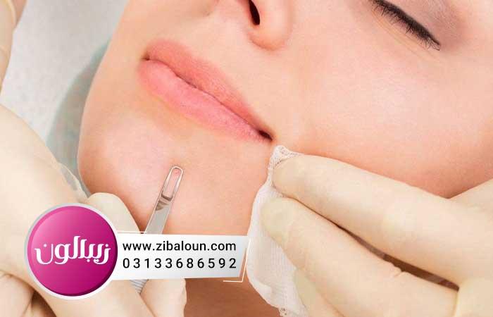 درمان جوش صورت در زنان