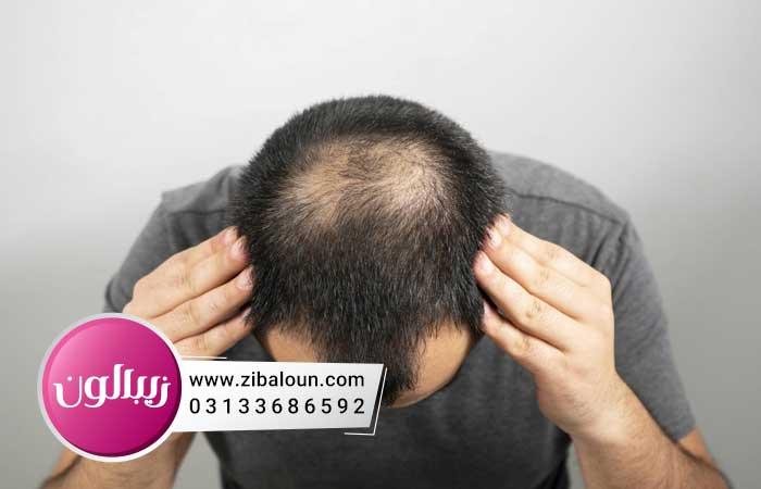 جدیدترین درمان ریزش مو مردان