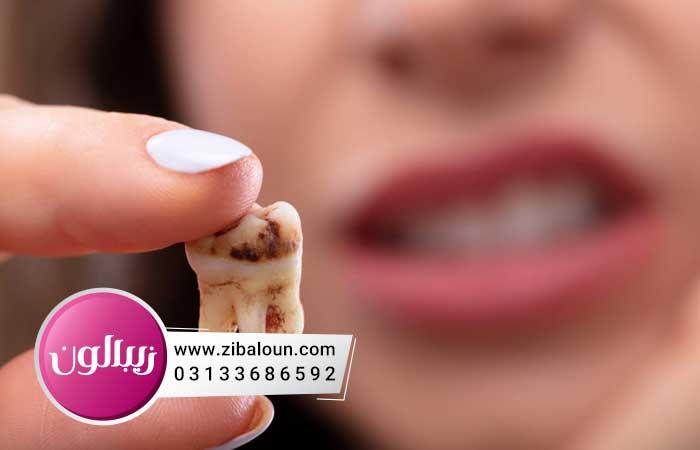 درمان پوسیدگی دندان با فلوراید