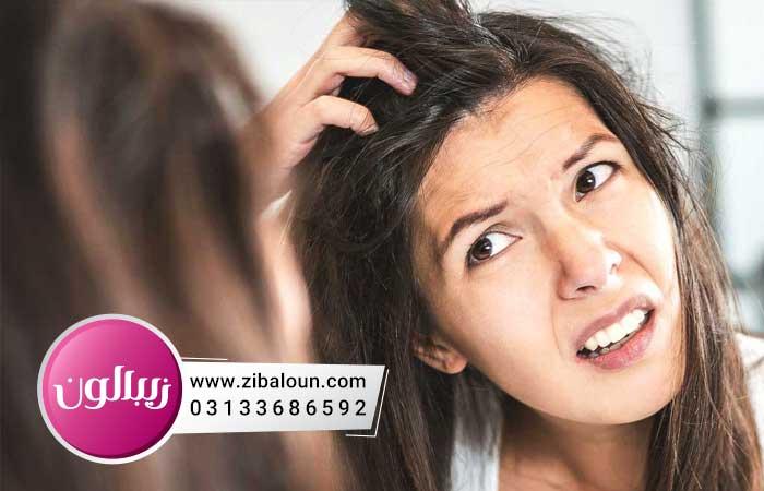 درمان فوری شوره سر در خانه