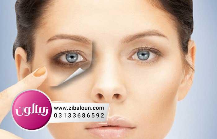 زالو درمانی برای چروک دور چشم