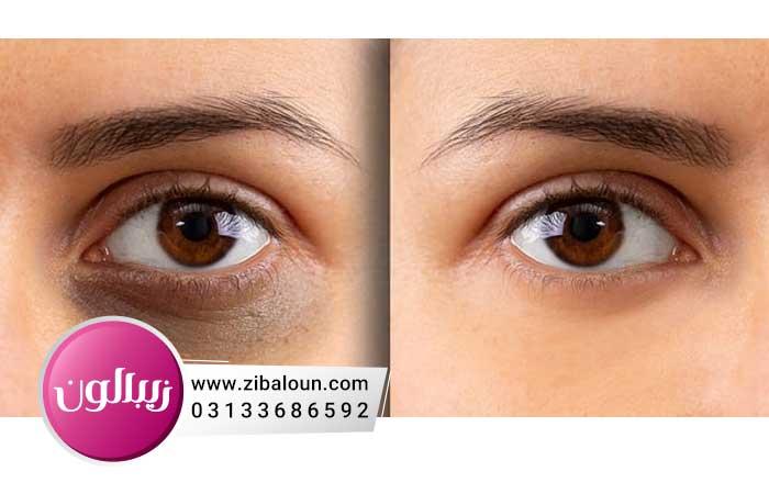 درمان چروک و سیاهی دور چشم